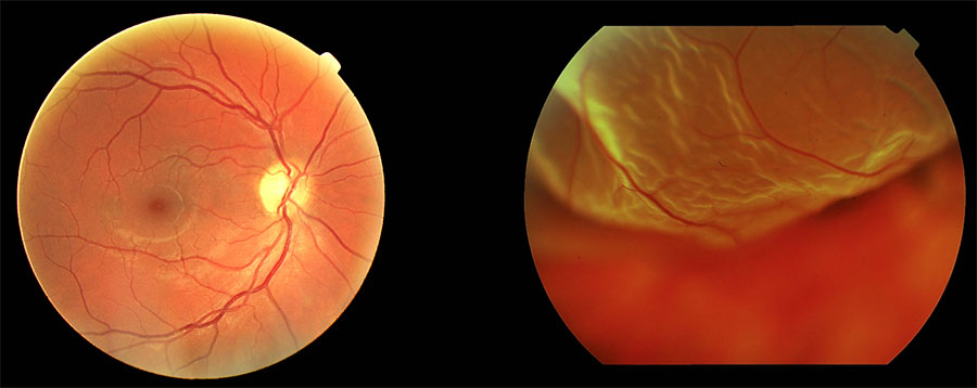 Retina-normal-vs-Desprendimiento-retina